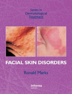 Ebook in inglese Facial Skin Disorders Marks, Ronald