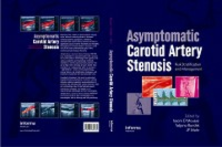 Ebook in inglese Asymptomatic Carotid Artery Stenosis -, -