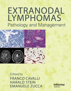 Ebook in inglese Extranodal Lymphomas -, -