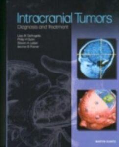 Ebook in inglese Intracranial Tumors