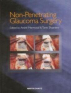 Ebook in inglese Non-Penetrating Glaucoma Surgery -, -