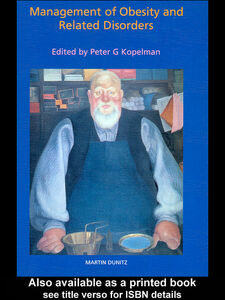 Ebook in inglese The Management of Obesity and Related Disorders Kopelman, Peter