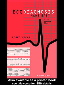 Ebook in inglese ECG Diagnosis Made Easy Vecht, Romeo J
