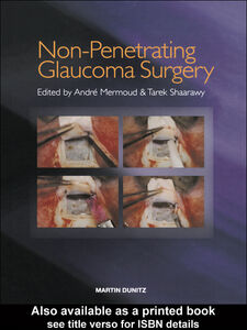 Ebook in inglese Non-Penetrating Glaucoma Surgery Mermoud, André , Shaarawy, Tarek