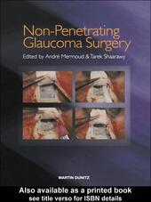 Non-Penetrating Glaucoma Surgery