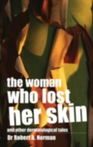 Ebook in inglese Woman Who Lost Her Skin Norman, Rob