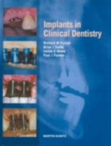 Ebook in inglese Implants in Clinical Dentistry Howe, Leslie C. , Palmer, Paul J. , Palmer, Richard M.