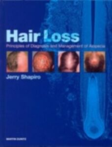 Ebook in inglese Hair Loss Shapiro, Jerry