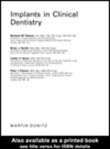 Ebook in inglese Implants in Clinical Dentistry Howe, Leslie C , Palmer, Paul J , Palmer, Richard M , Smith, Brian J