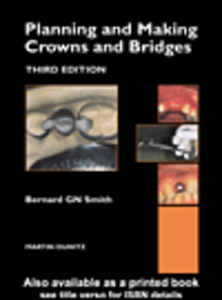 Ebook in inglese Planning and Making Crowns and Bridges Smith, Bernard GN
