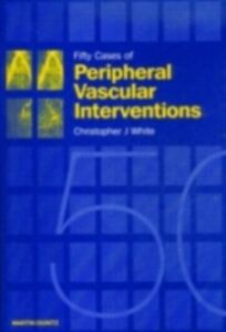 Ebook in inglese Fifty Cases of Peripheral Vascular Interventions White, Christopher J.