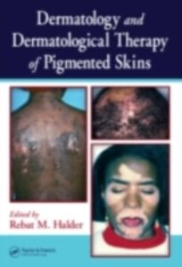 Ebook in inglese Dermatology and Dermatological Therapy of Pigmented Skins