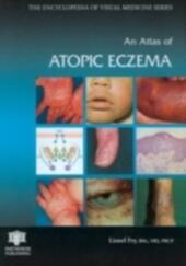 Atlas of Atopic Eczema