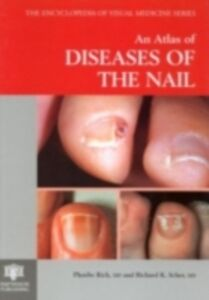 Ebook in inglese Atlas of Diseases of the Nail Rich, Phoebe , Scher, Richard K.