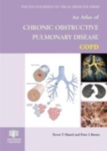 Ebook in inglese Atlas of Chronic Obstructive Pulmonary Disease Barnes, Peter J. , Hansel, Trevor T.