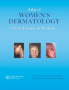 Ebook in inglese Atlas of Women's Dermatology Brenner, Sara , Lawrence Charles Parish, MD , Parish, Jennifer L. , Silva, Marcia Ramos e