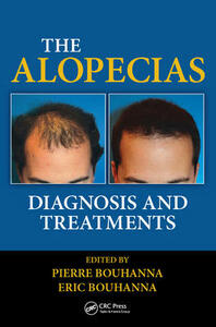 The Alopecias: Diagnosis and Treatments - cover