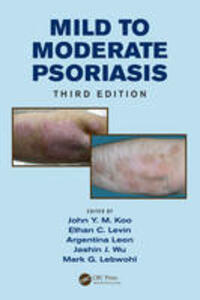 Mild to Moderate Psoriasis - cover