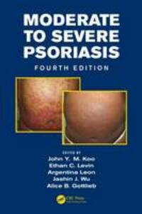Moderate to Severe Psoriasis - cover