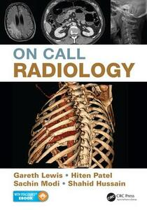 On Call Radiology - Gareth Lewis,Sachin Modi,Hiten Patel - cover