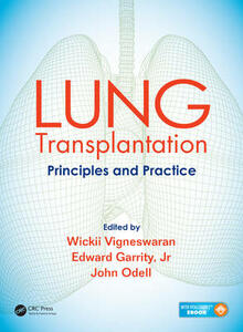 Lung Transplantation: Principles and Practice - cover