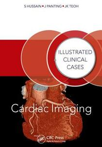 Cardiac Imaging: Illustrated Clinical Cases - Shahid Hussain,Jonathan Panting,Jun Kiat Teoh - cover