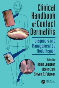 Clinical Handbook of Contact Dermatitis: Diagnosis and Management by Body Region - cover