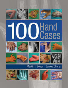 100 Hand Cases - Martin I. Boyer,James Chang - cover