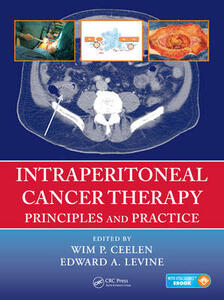 Intraperitoneal Cancer Therapy: Principles and Practice - cover