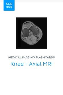 Medical Imaging flashcards: Knee - Axial MRI