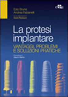 Capturtokyoedition.it La protesi implantare. Vantaggi, problemi e soluzioni pratiche Image