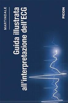 Camfeed.it Guida illustrata all'interpretazione dell'ECG Image
