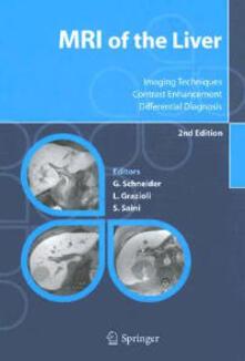 Mri of the liver. Imaging techniques, contrast enhancement, differential diagnosis - Guenther Schneider,Luigi Grazioli,Sanjay Saini - copertina