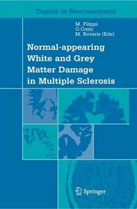 Normal appearing white and grey matter damage in multiple sclerosis