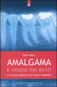Tegliowinterrun.it Amalgama. Il veleno nei denti. La causa nascosta di molte malattie Image