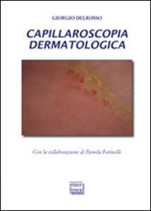 Capillaroscopia dermatologica
