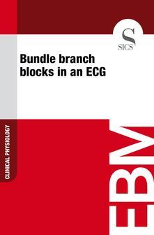 Bundle Branch Blocks in an ECG