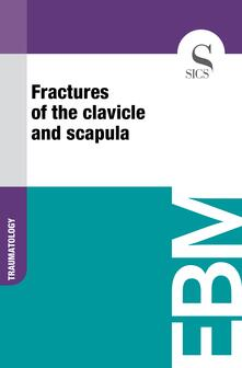 Fractures of the Clavicle and Scapula