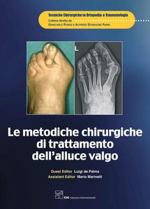 Ebook metodiche chirurgiche di trattamento dell'alluce valgo