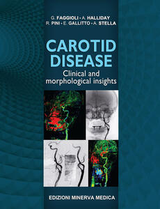 Carotid disease. Clinical and morphological insights