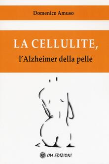 Voluntariadobaleares2014.es La cellulite. L'alzheimer della pelle Image